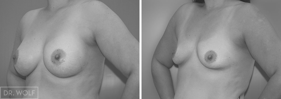 ניתוח הגדלת חזה לפני ואחרי - מקרה 1 זווית צד