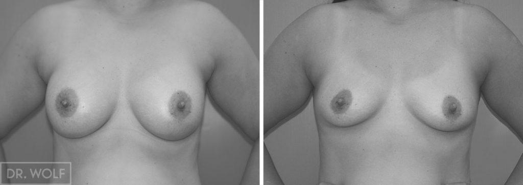 הגדלת חזה - לפני אחרי, מקרה 1, פרונטאלי