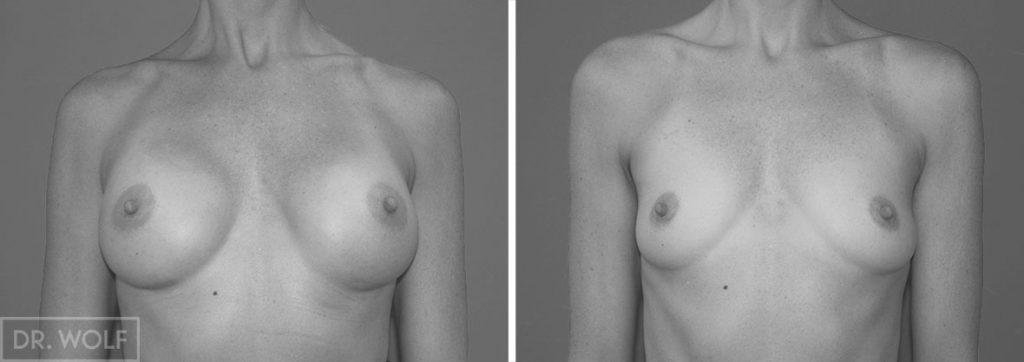 תוצאות ניתוח הגדלת חזה , מקרה 2 , מבט פרונטאלי