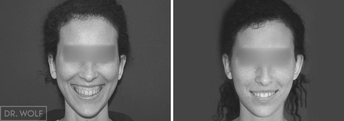 הצמדת אוזניים לפני ואחרי