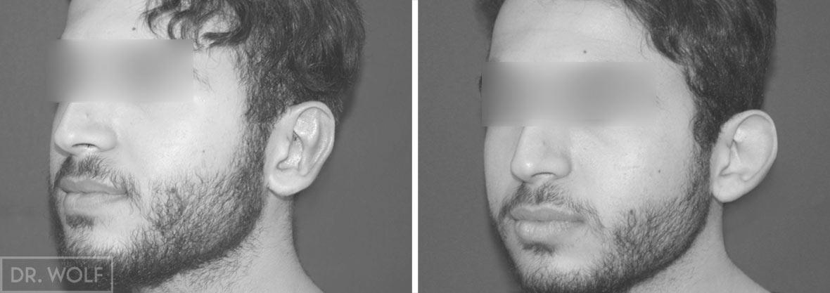 תוצאות הצמדת אוזניים לפני ואחרי