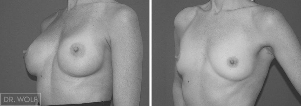 ניתוח הגדלת חזה - תוצאות, מבט מהצד, מקרה 2