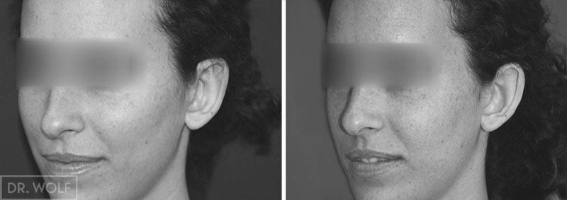 ניתוח הצמדת אוזניים לפני ואחרי