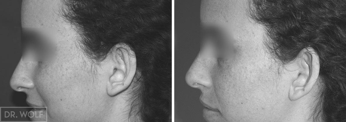 ניתוח הצמדת אוזניים - תוצאות
