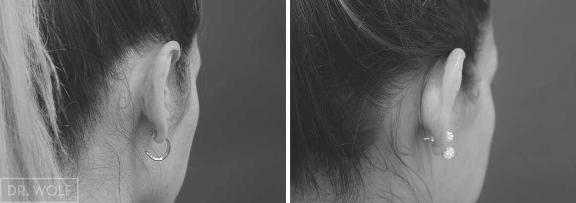 ניתוח הצמד אוזניים בולטות, מקרה 3, מבט מאחור