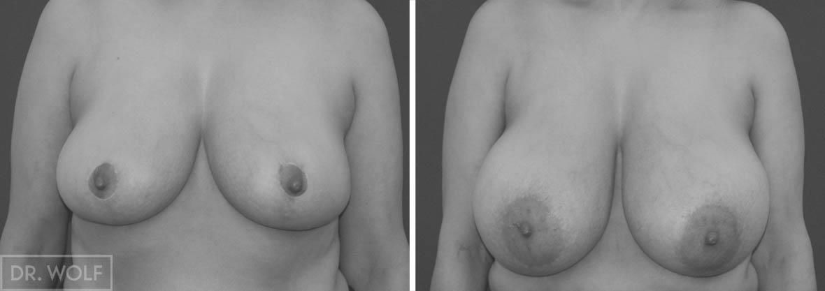 תוצאות ניתוח הקטנת חזה, מקרה 1, מבט ממול