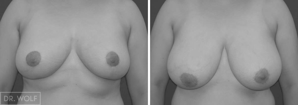 הקטנת חזה לפני ואחרי - מקרה 3 מבט ממול