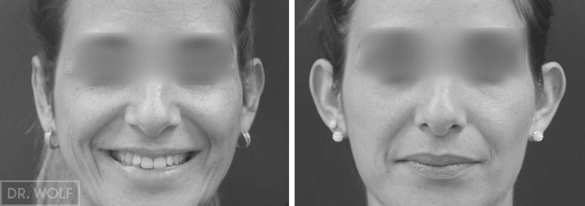 ניתוח הצמד אוזניים בולטות, מקרה 3, מבט ממול