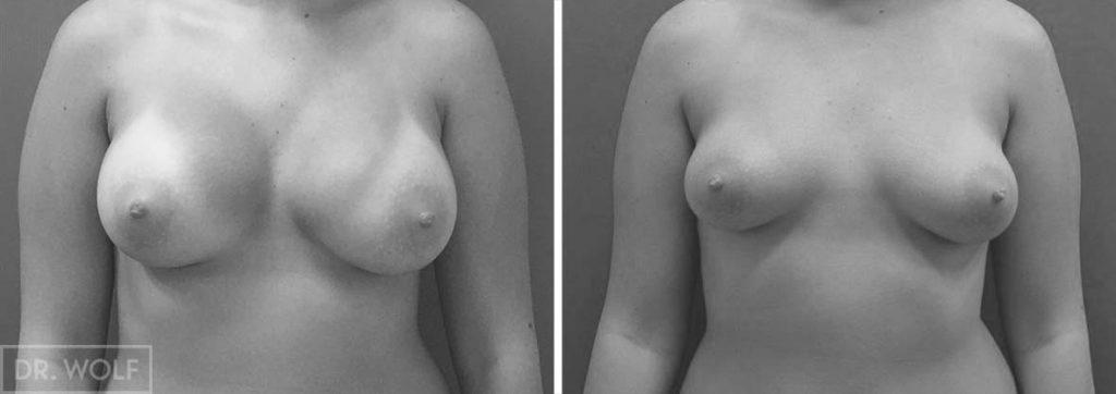תוצאות ניתוח הגדלת חזה, מקרה 4, מבט ממול