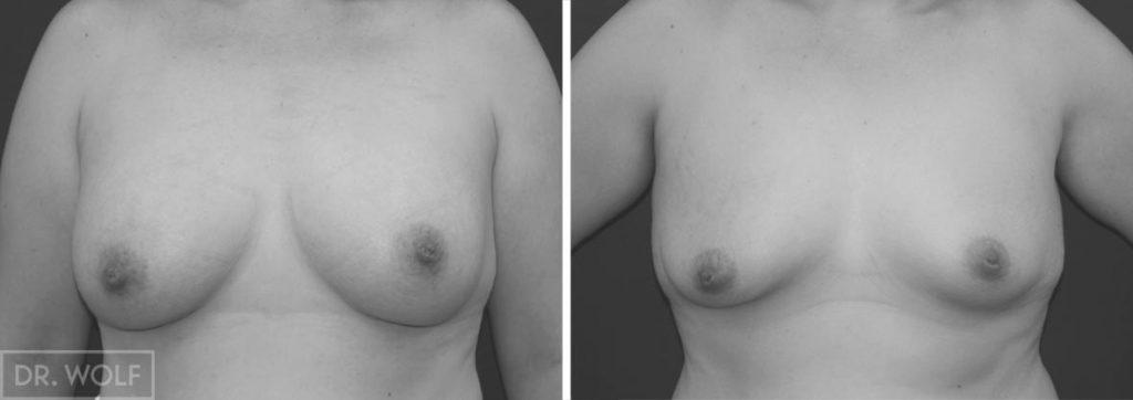 תוצאות ניתוח הגדלת חזה, מקרה 5, מבט ממול