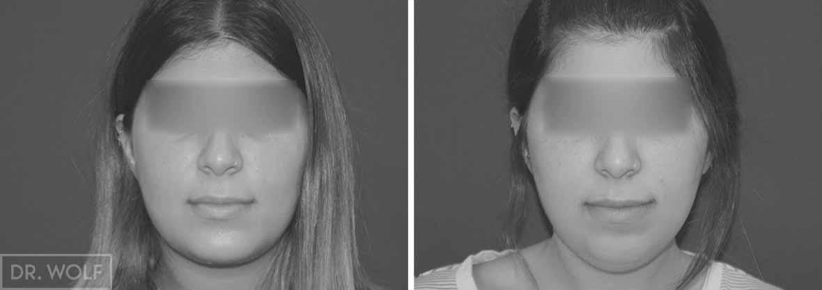 תוצאות ניתוח לשיפוץ הסנטר - מבט ממול