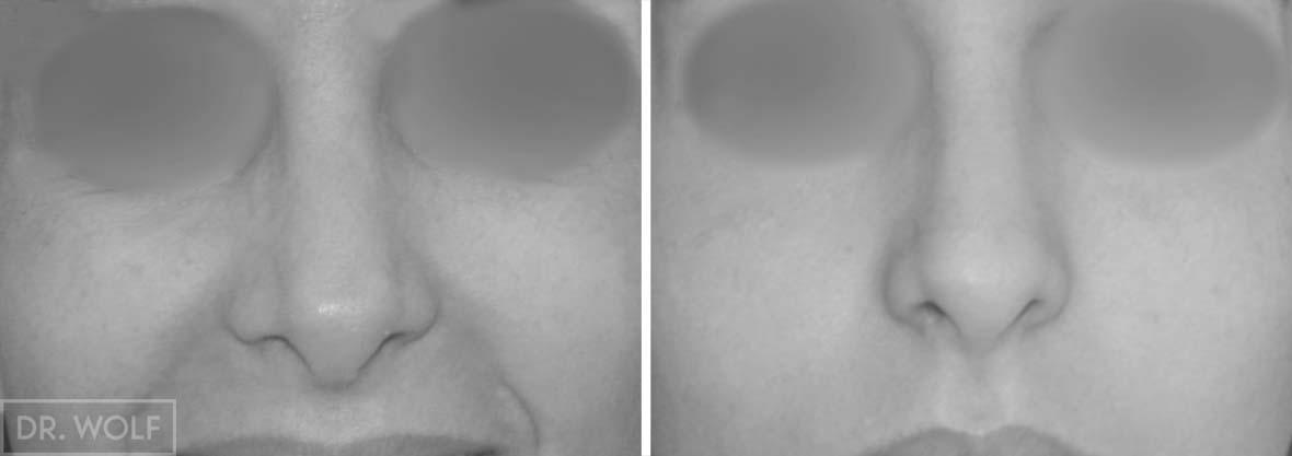 ניתוח אף לפני ואחרי , מקרה 2 , מבט ממול