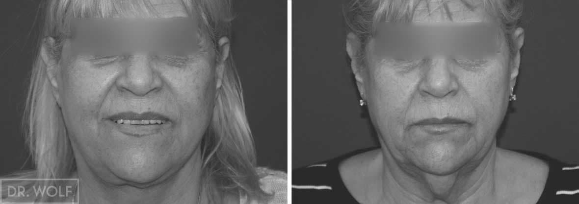 תוצאות ניתוח מתיחת פנים, מקרה 1,מבט ממול