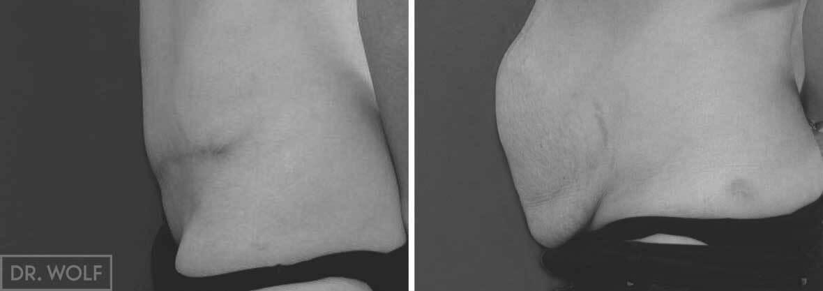 מתיחת בטן משולב - מקרה 2 , בטן