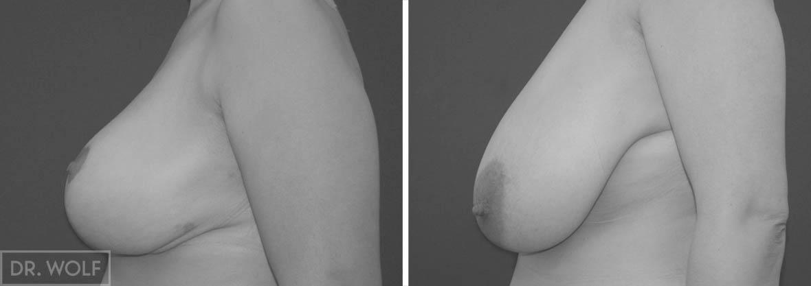 ניתוח הקטנת חזה, לפני ואחרי, מקרה 2 , פרופיל
