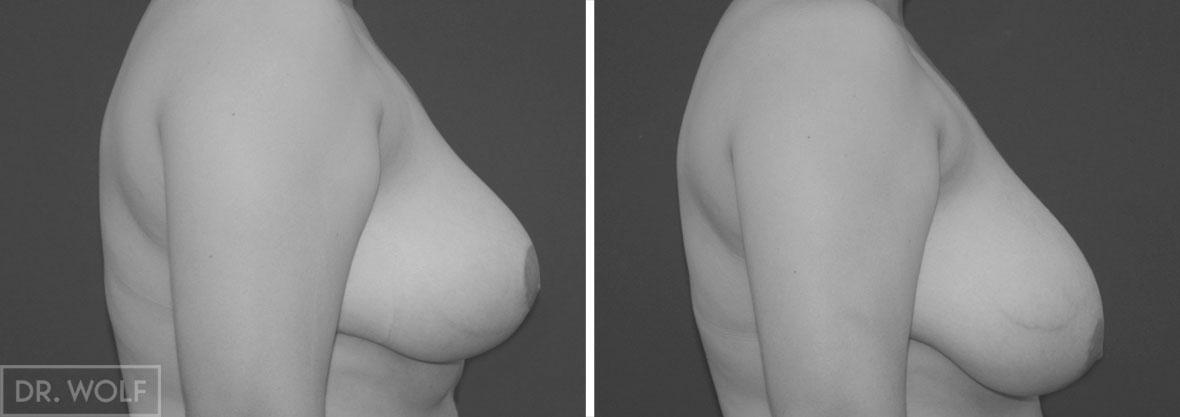 הקטנת חזה לפני ואחרי - מקרה 3 פרופיל