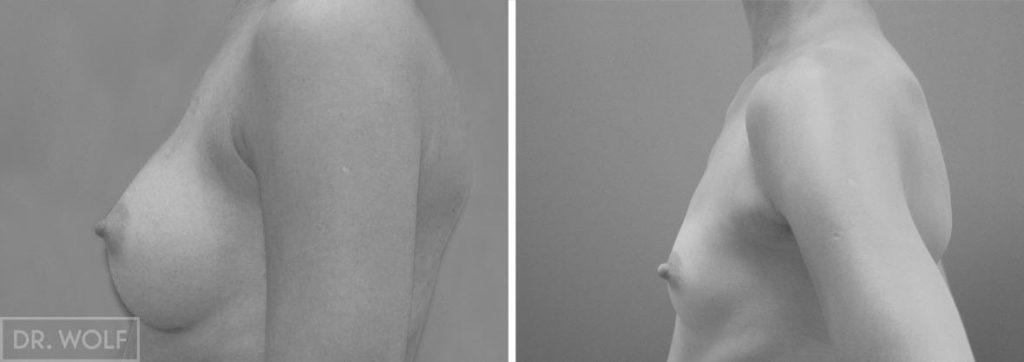 תוצאות ניתוח הגדלת חזה, מקרה 3, פרופיל