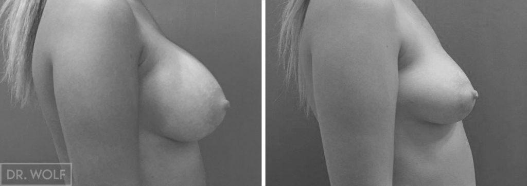 תוצאות ניתוח הגדלת חזה, מקרה 4, פרופיל