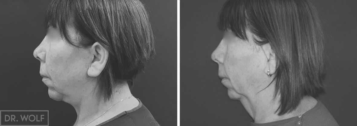 פנים לפני ואחרי, מקרה 2, פרופיל