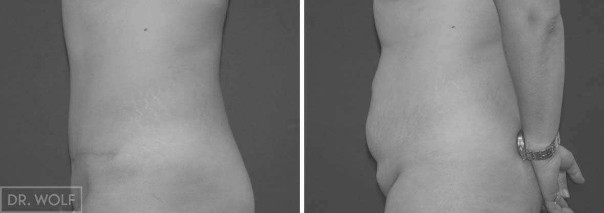 תוצאות ניתוח מתיחת בטן - פרופיל