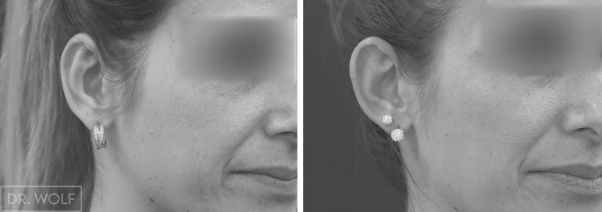 ניתוח הצמד אוזניים בולטות, מקרה 3, מבט מהצד