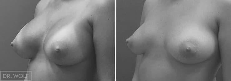 תוצאות ניתוח הגדלת חזה, מקרה 4, מבט מהצד
