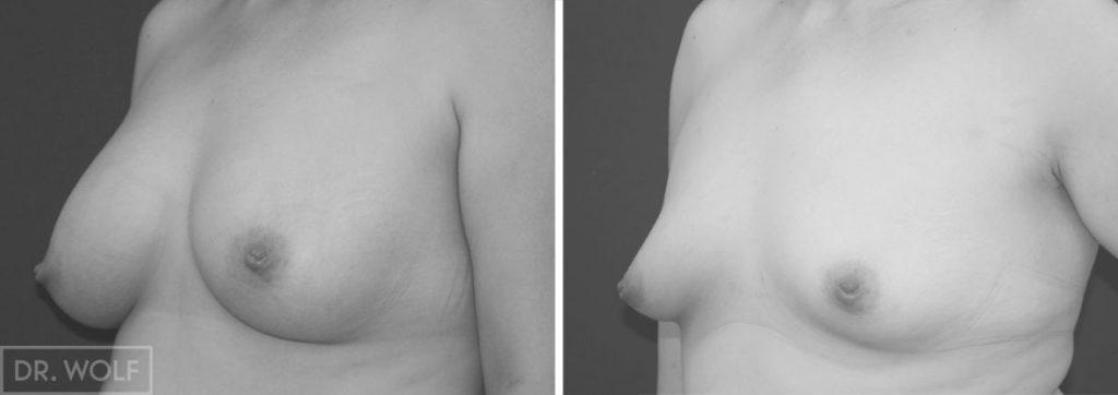 תוצאות ניתוח הגדלת חזה, מקרה 5 מבט מהצד