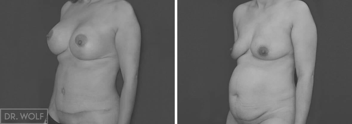 תוצאות ניתוח בטן והרמת חזה, מקרה 1 , מבט מהצד