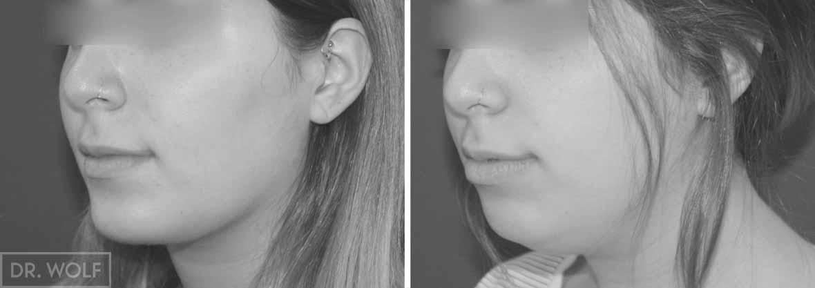 תוצאות ניתוח לשיפוץ הסנטר - מבט מהצד