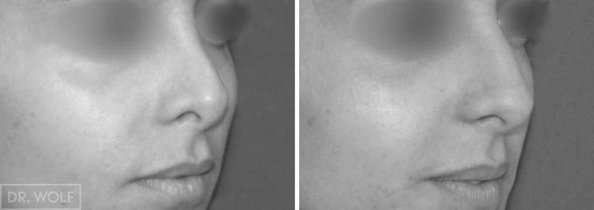 ניתוח אף לפני ואחרי , מקרה 2 מבט מהצד