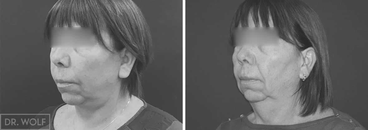 ניתוח מתיחת פנים לפני ואחרי, מקרה 2,מבט מהצד