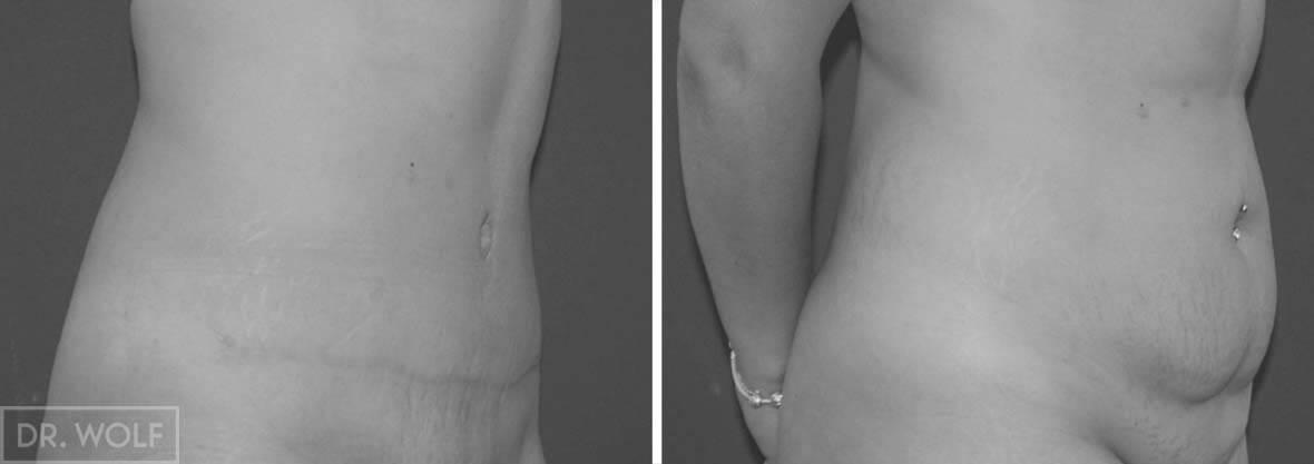 תוצאות ניתוח מתיחת בטן - מבט מהצד