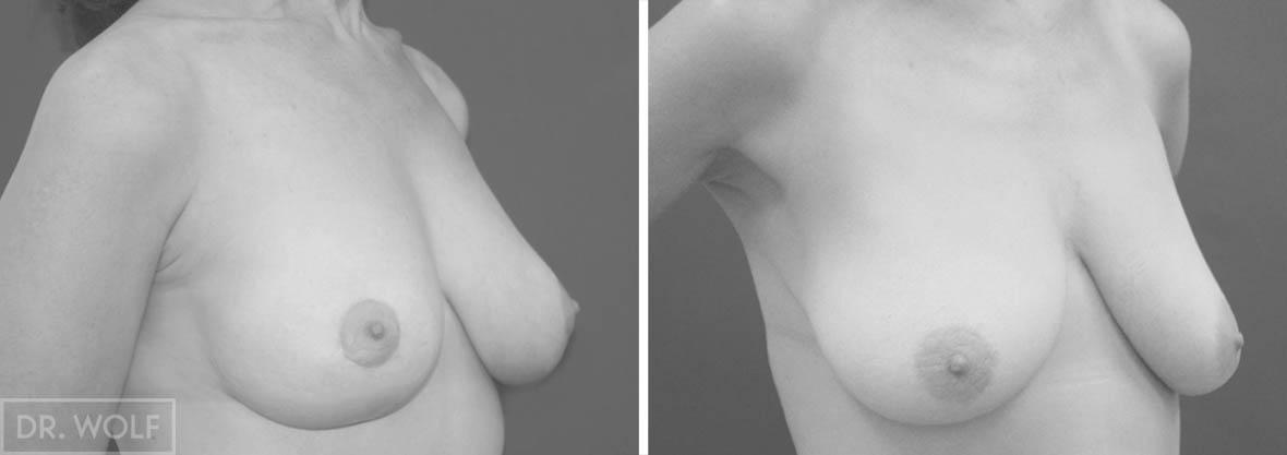 ניתוח הרמת חזה , מקרה 1 , מבט מהצד