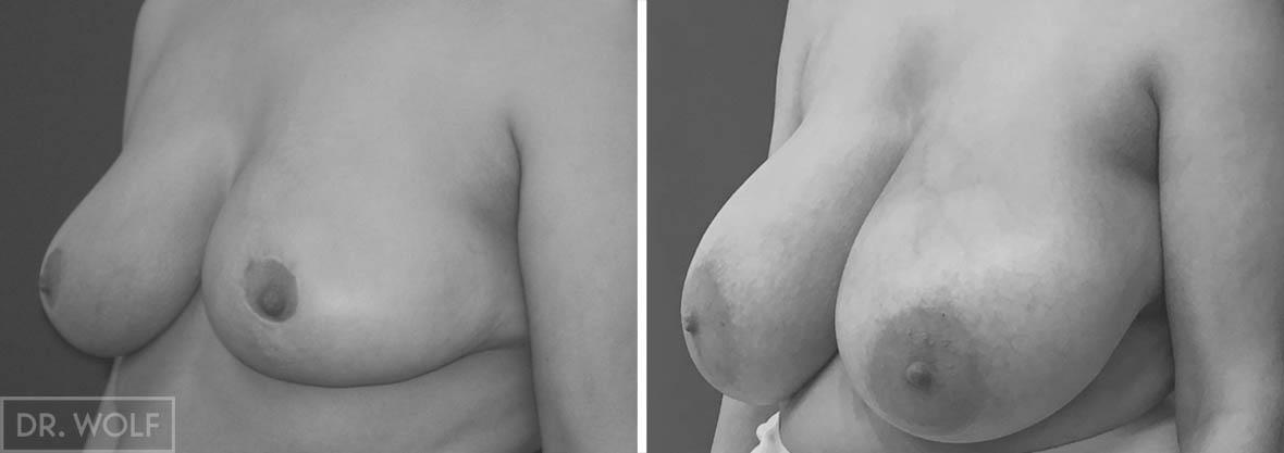 תוצאות ניתוח הקטנת חזה, מקרה 1, מבט מהצד