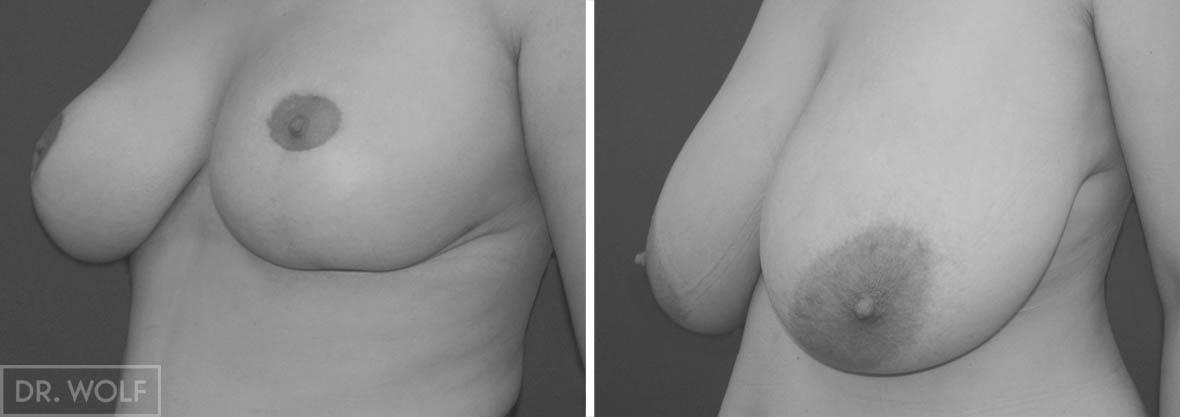 ניתוח הקטנת חזה, לפני ואחרי, מקרה 2 , מבט מהצד