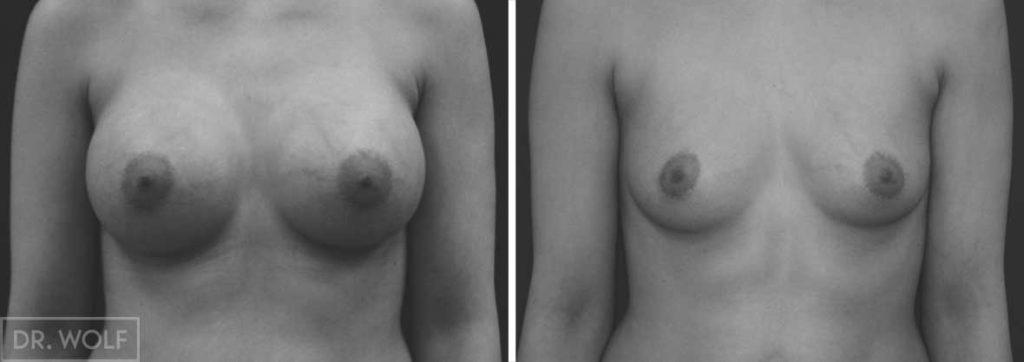 תוצאות ניתוח הגדלת חזה, מקרה 8 מבט ממול