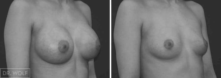 תוצאות ניתוח הגדלת חזה, מקרה 8 מבט מהצד