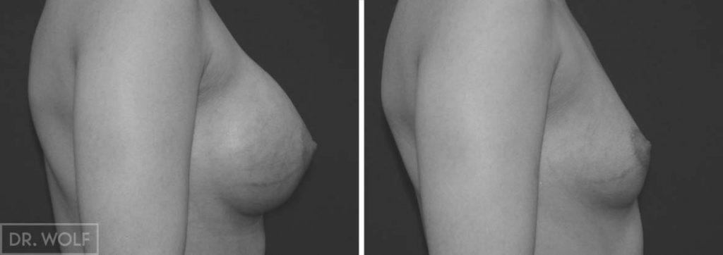 תוצאות ניתוח הגדלת חזה, מקרה 8, פרופיל