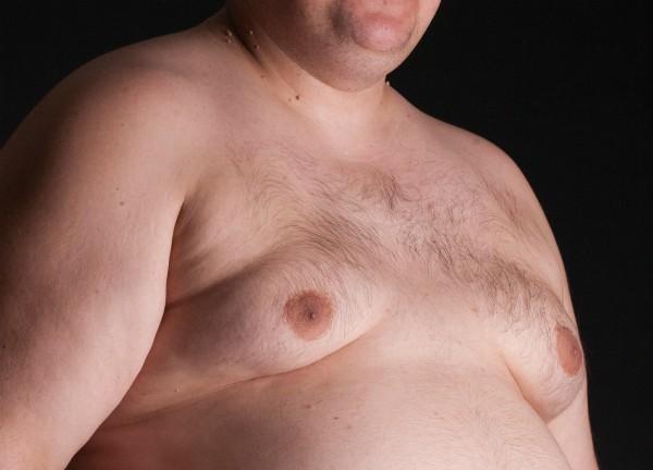 ניתוח גניקומסטיה להקטנת חזה לגבר
