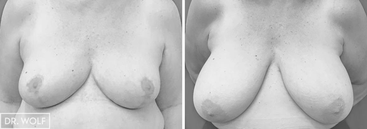 תוצאות ניתוח הקטנת חזה מקרה 7 מבט ממול