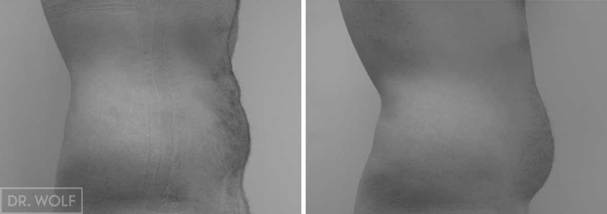 תוצאות ניתוח שאיבת שומן פרופיל ימין