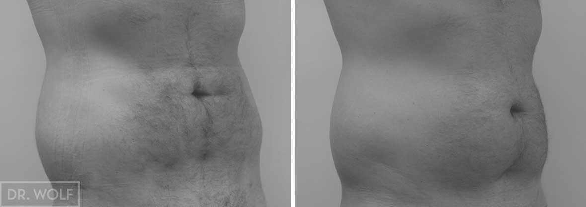 ניתוח שאיבת שומן צד ימין