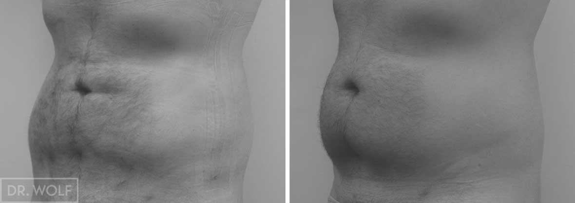 ניתוח שאיבת שומן צד שמאל