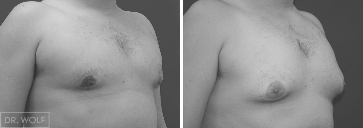 תוצאות ניתוח גינקומסטיה מבט צד ימין