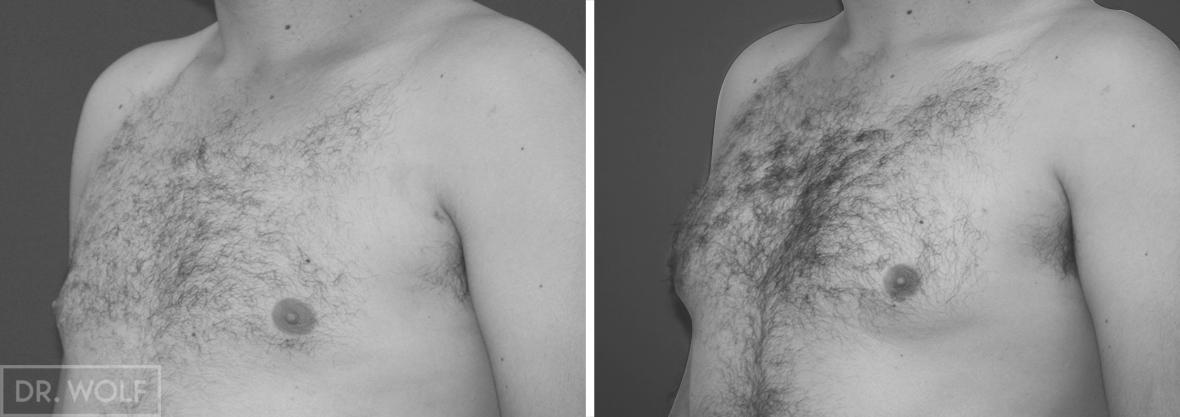 תוצאות ניתוח גינקומסטיה מבט צד שמאל