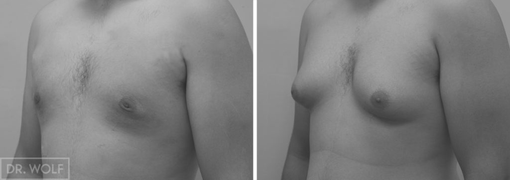 ניתוח גינקומסטיה תמונות לפני ואחרי