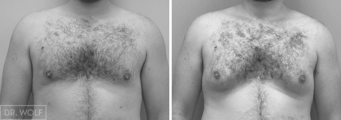תוצאות ניתוח גינקומסטיה מבט ממול