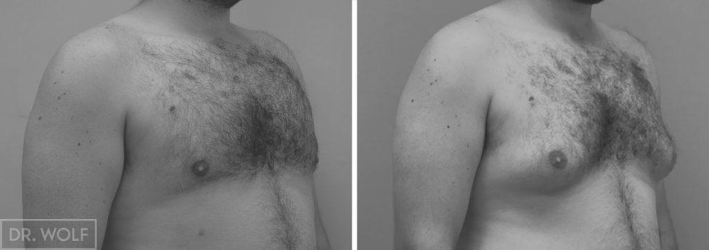 תוצאות ניתוח גינקומסטיה צד ימין