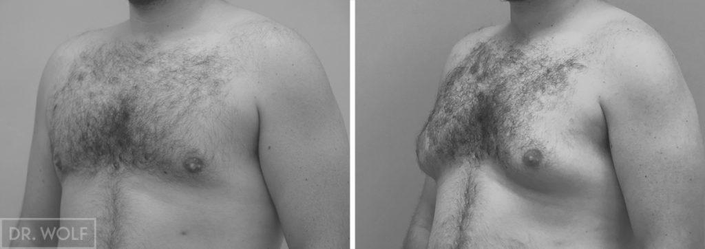 תוצאות ניתוח גינקומסטיה צד שמאל