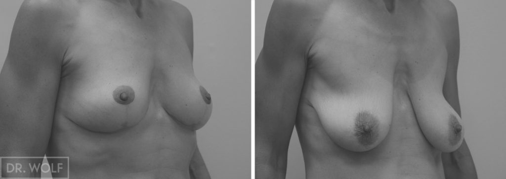 הרמת חזה תמונות לפני ואחרי